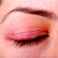 rosacea-eye